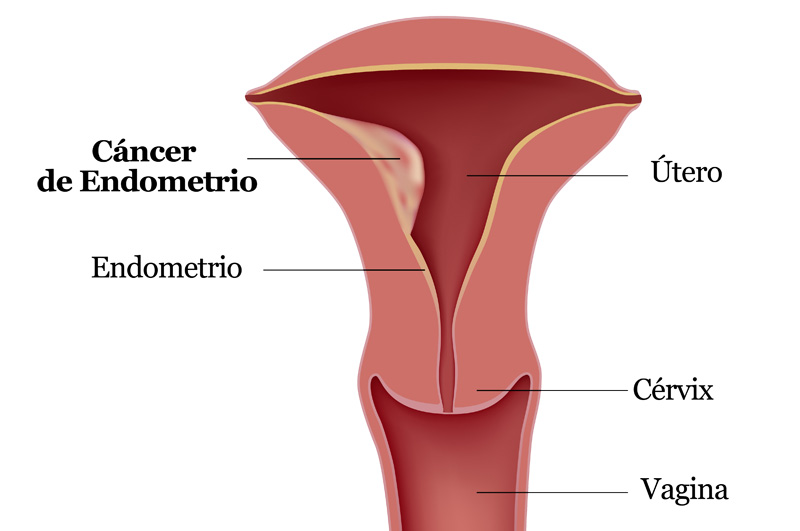 cancer_endometrio