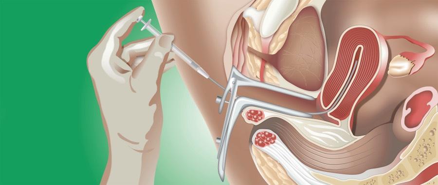 inseminacion-intrauterina-monterrey-que-es-efectividad-costos_Fotor